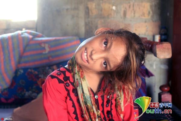 巴基斯坦女孩患怪病 摔一跤脖子弯成90度 中国绿创